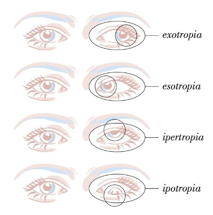 strabismo posizione occhi