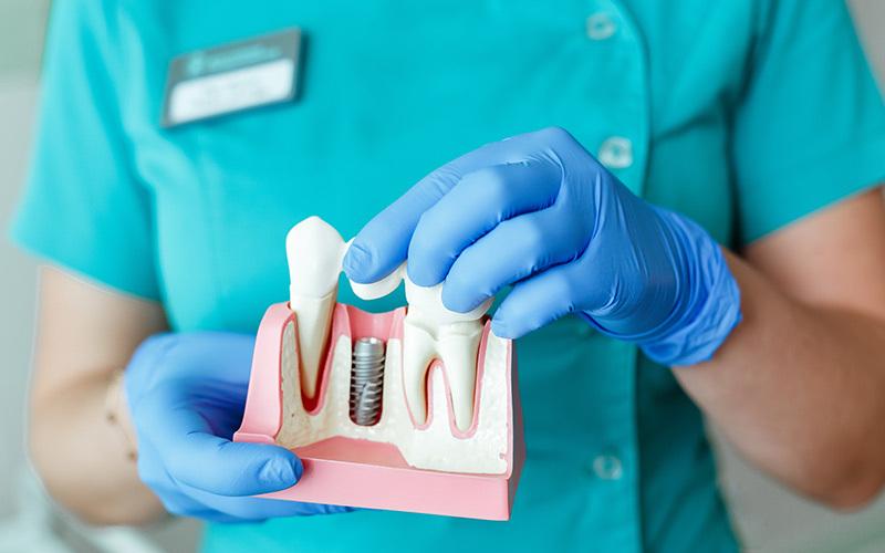 Come si fa un impianto dentale