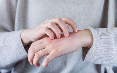 Cos'è la dermatite e come si affronta