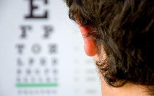 Cos'è la miopia