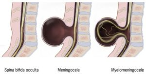 spina bifida tipologie