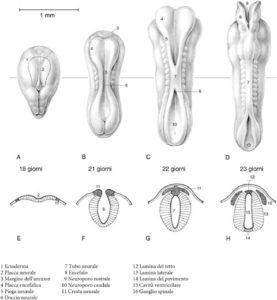 spina bifida tubo neurale